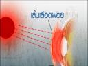 วันละนิดวิทย์เทคโน ตอน ทำไมเมื่อหลับตากลางแดดถึงมองเห็นสีแดง